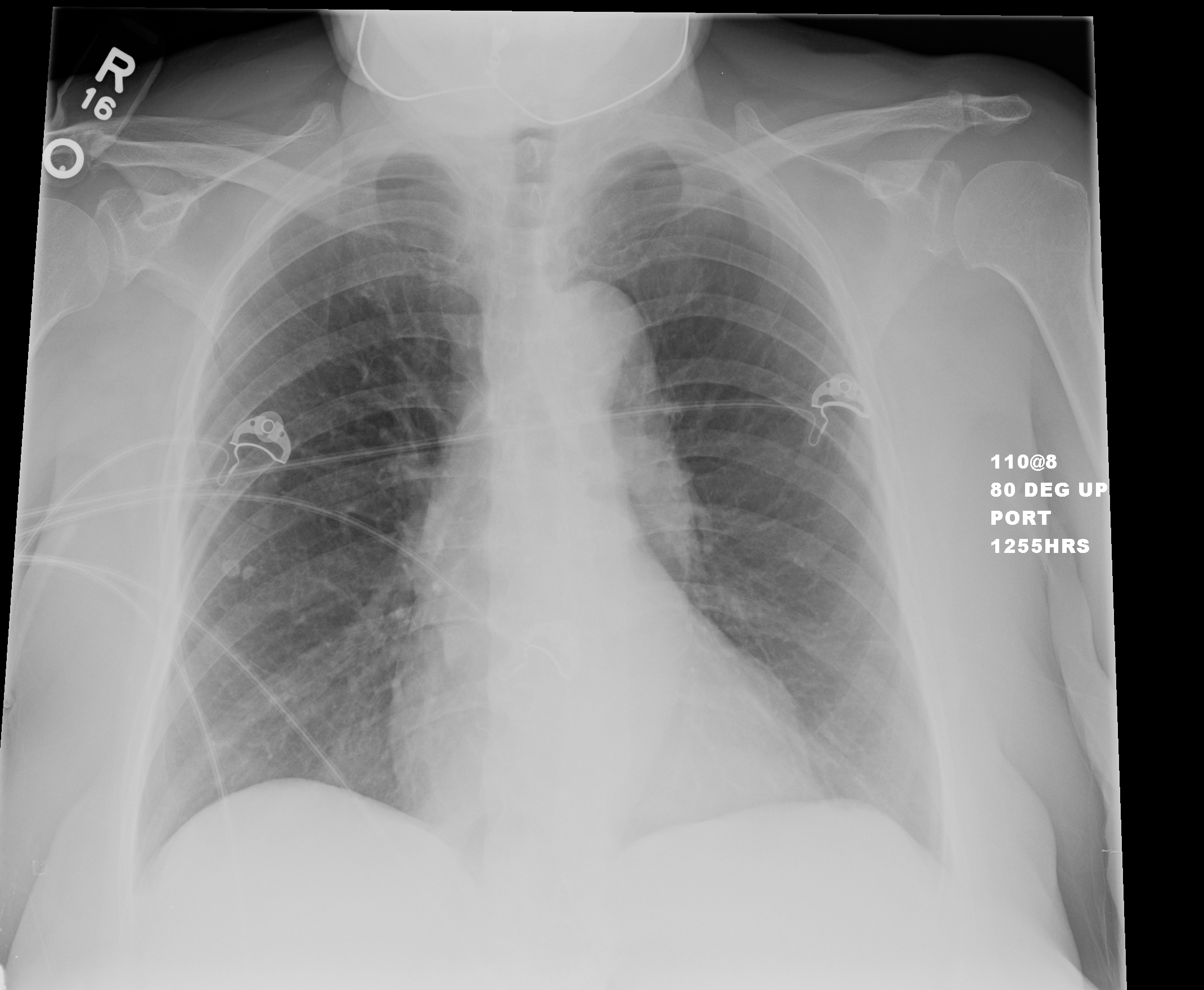 Two calcified nodules can be seen in the lateral R mid lung field ...