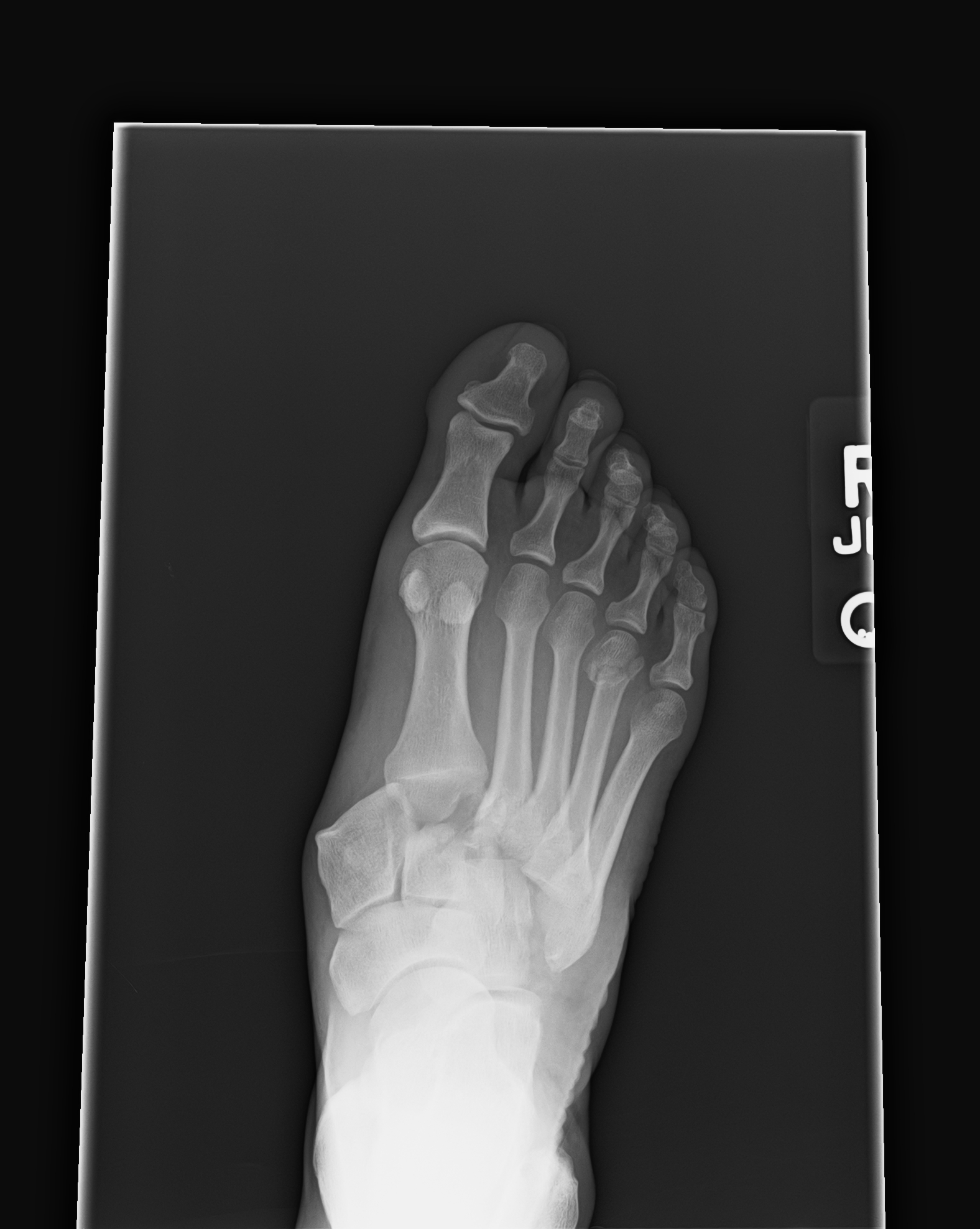 EM REMS | Category Archive | Foot XR
