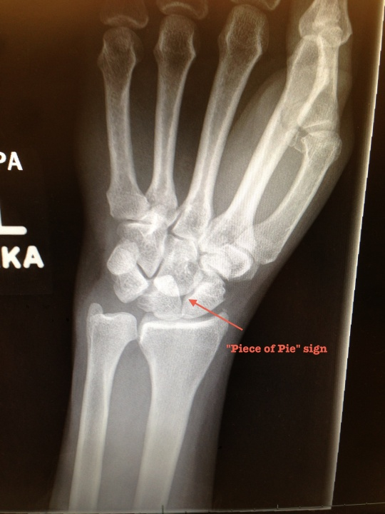 Lunate dislocation 2