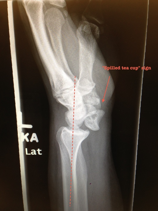Lunate dislocation