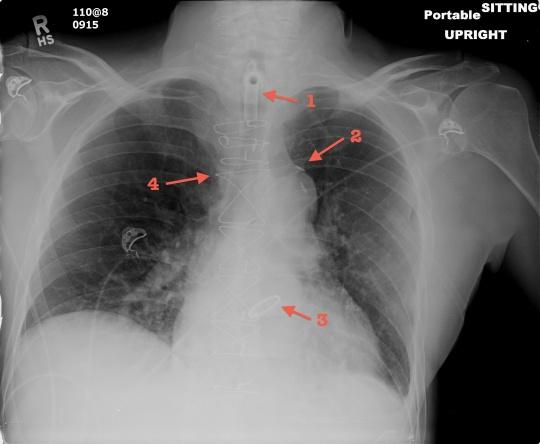 Aortic valve repair