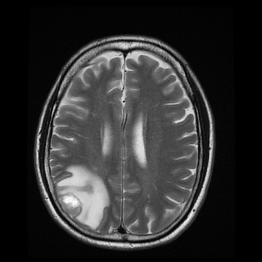 brain scan with tumor - photo #16