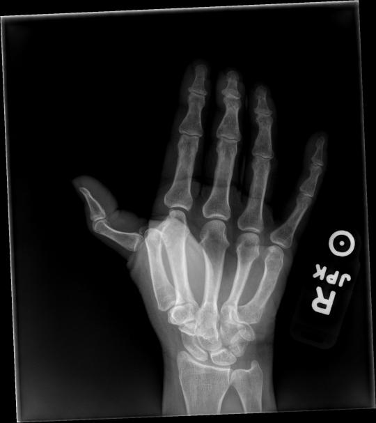 thumb mcp 2