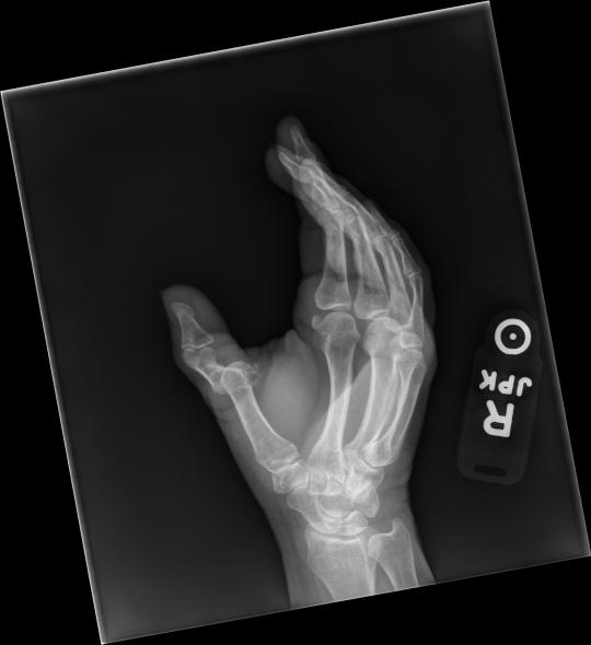 thumb mcp3