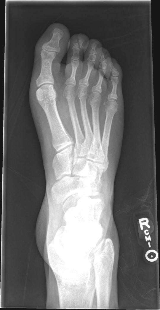 DP fx toe