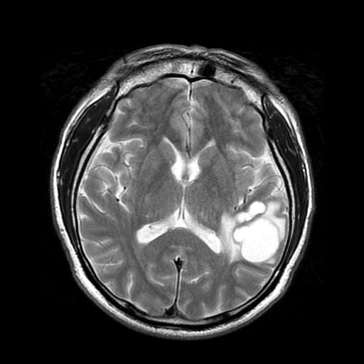 T2 MRI cystic lesion