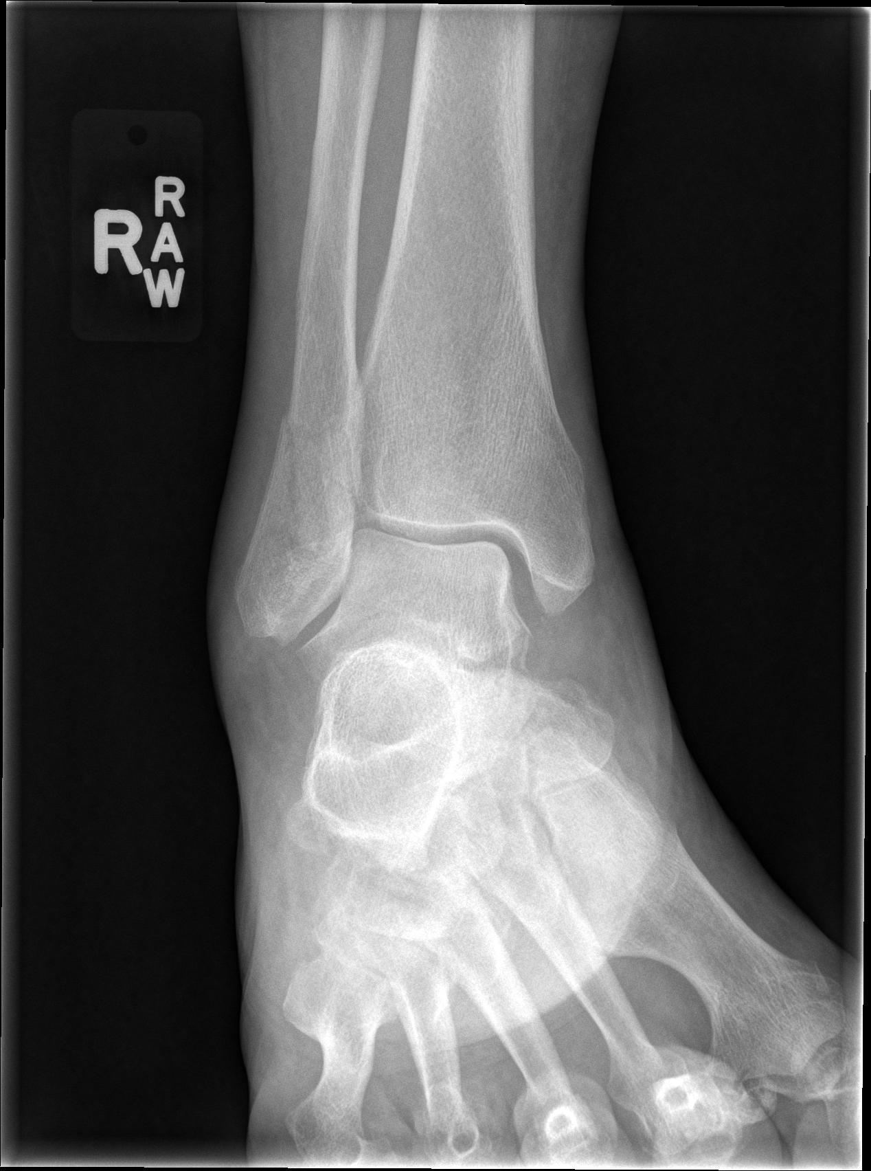 Distal Fib Fx Fibula Fracture Em Rems