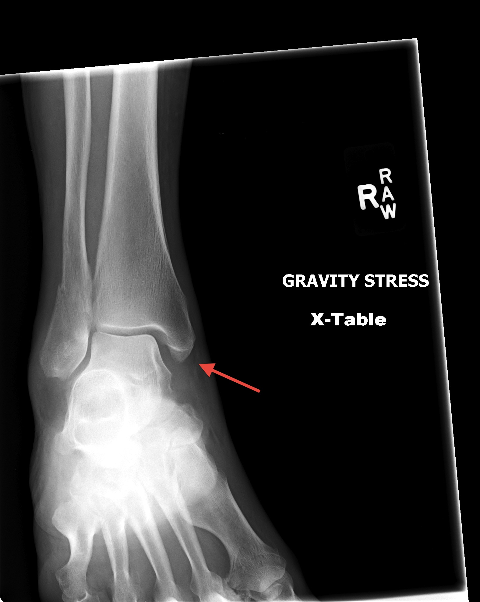 EM REMS | Category Archive | Ankle XR