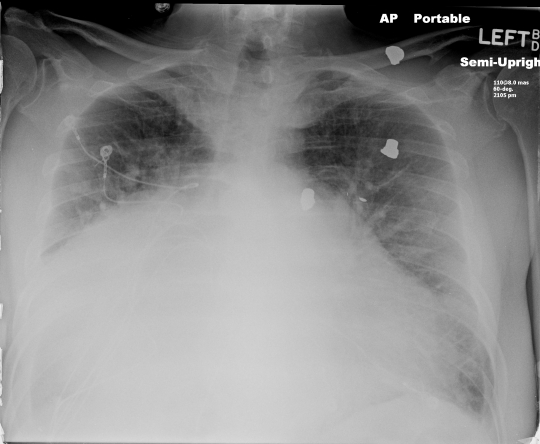 Massive cardiomegally 1
