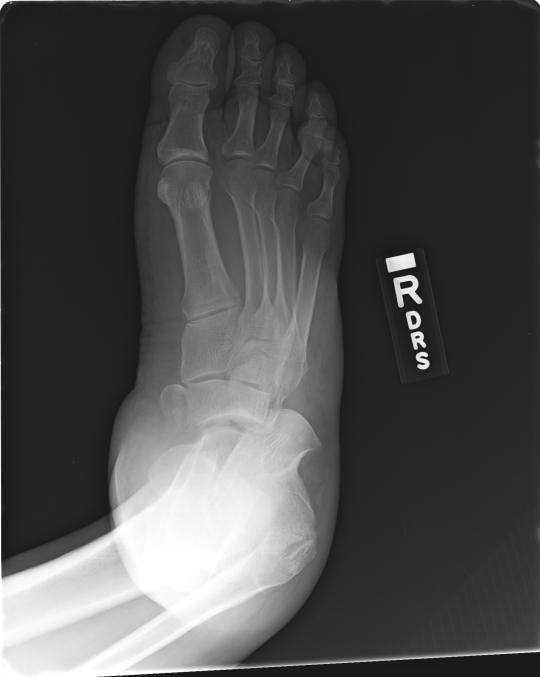 Foot fracture 1