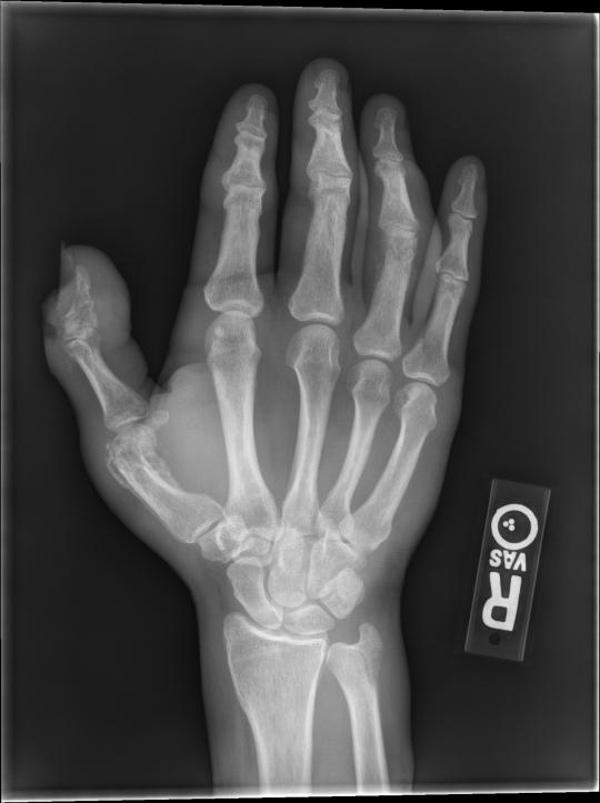 OM hand