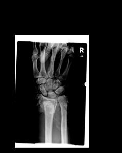 Wrist GF 1