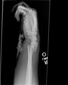 Wrist GF2